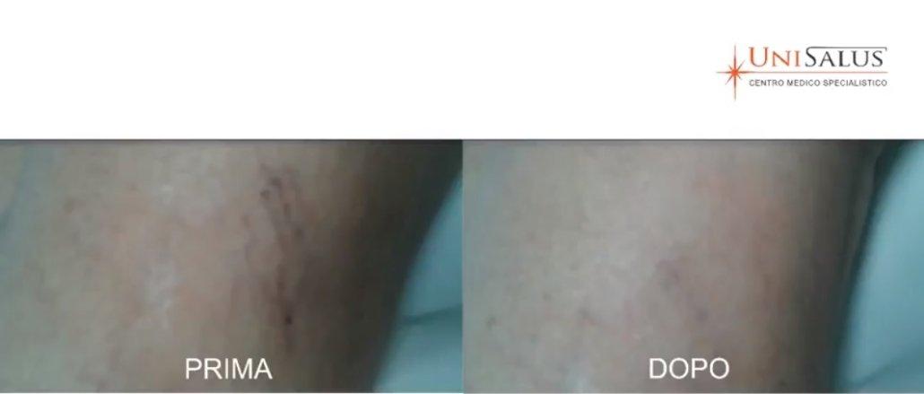 capillari laser rimozione