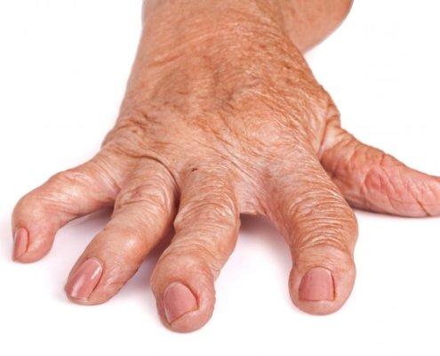come si cura l artrite