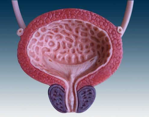sindrome della vescica iperattiva