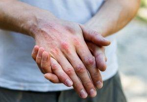 dermatite da sudore