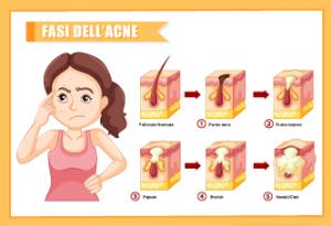 sintomi e segni acne